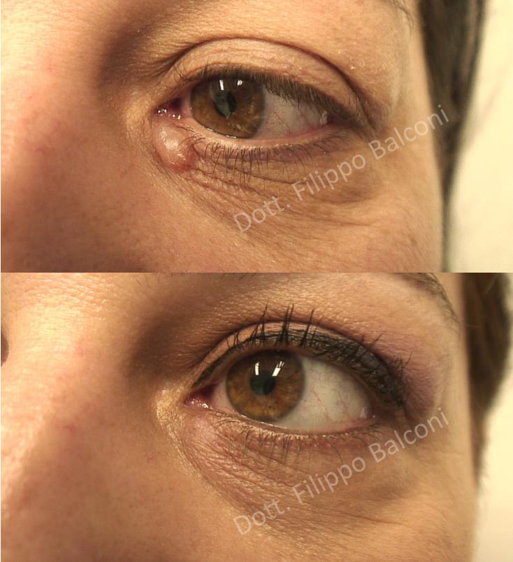 Dermatologia Laser